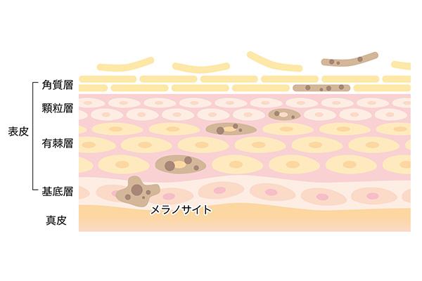 メラノサイトで作られるメラニン色素が原因